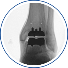 Total Ankle Replacement