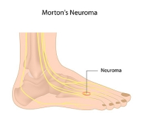 What Causes Morton's Neuroma?